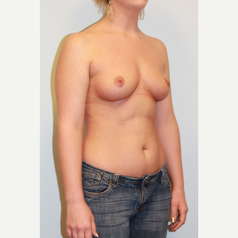 18-24 year old woman treated with Breast Implants before 3027235