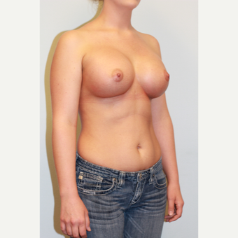 18-24 year old woman treated with Breast Implants after 3027235