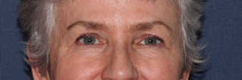 Ulthera Eyes | Before and After before 1033980