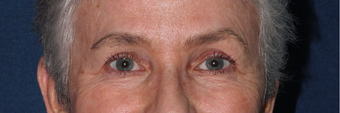 Ulthera Eyes | Before and After after 1033980