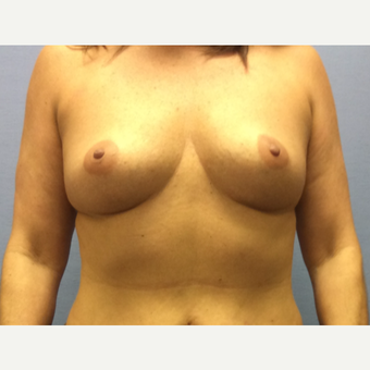 35-44 year old woman treated with Breast Augmentation before 3378228