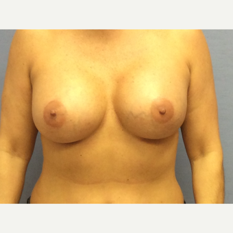 35-44 year old woman treated with Breast Augmentation after 3378228