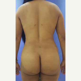 32 year old woman treated with Brazilian Butt Lift after 3228224