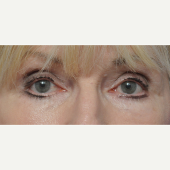 Woman treated with lower eyelid surgery after 3440153