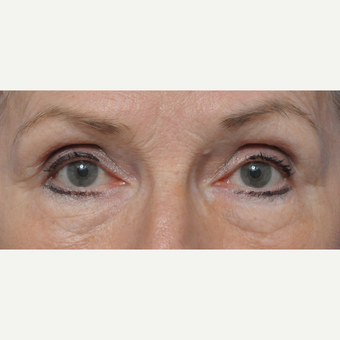 Woman treated with lower eyelid surgery before 3440153