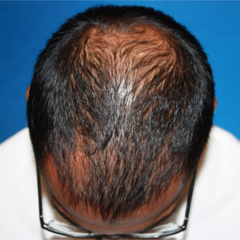 35-44 year old man treated with FUE Hair Transplant before 3725456