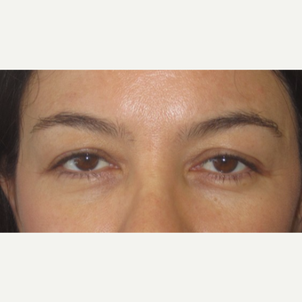 35-44 year old woman treated with Eyelid Surgery before 3550229