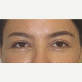 35-44 year old woman treated with Eyelid Surgery after 3550229