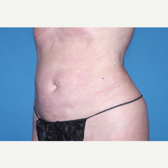 35-44 year old woman treated with Liposuction after 3644266