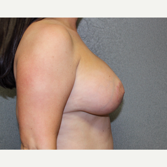 Breast Lift with Implants after 3370469
