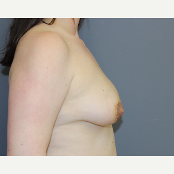 Breast Lift with Implants before 3370469
