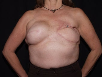59 year old breast cancer survivor with failed breast reconstruction looking for revision before 1289201