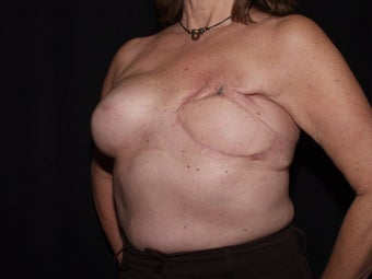 59 year old breast cancer survivor with failed breast reconstruction looking for revision 1289201