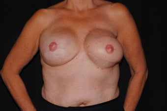 59 year old breast cancer survivor with failed breast reconstruction looking for revision after 1289201