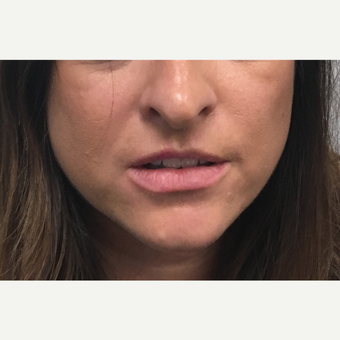 25-34 year old woman treated with Restylane Silk before 3804167