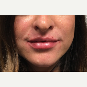 25-34 year old woman treated with Restylane Silk after 3804167