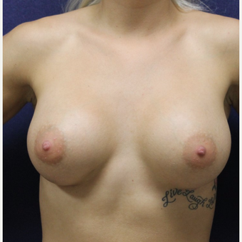 18-24 year old woman treated with Breast Augmentation after 3651637