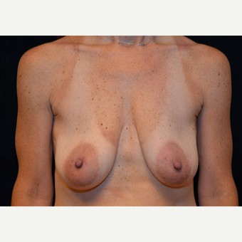 45-54 year old woman treated with Breast Lift before 3576072