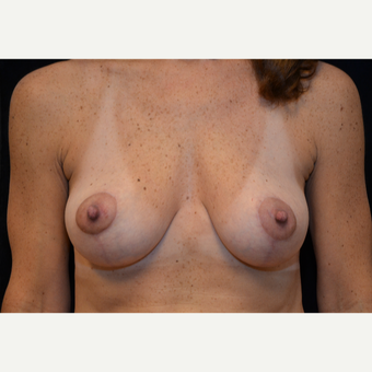 45-54 year old woman treated with Breast Lift after 3576072