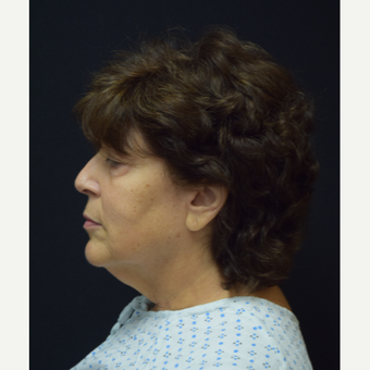 65-74 year old woman treated with Deep Plane Facelift before 3376575