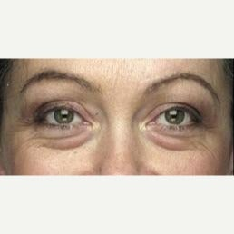 35-44 year old woman treated with Eyelid Surgery before 2232619