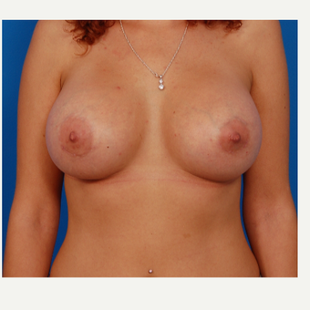 25-34 year old woman treated with Breast Augmentation after 3577034