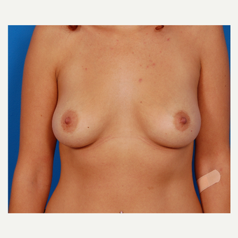 25-34 year old woman treated with Breast Augmentation before 3577034