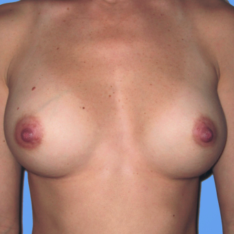 Breast Augmentation after 3727086