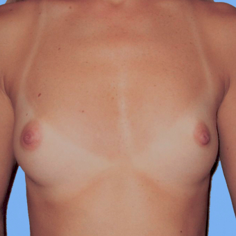 Breast Augmentation before 3727086