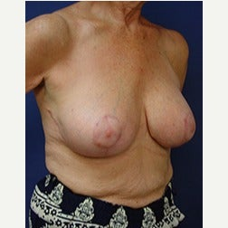 65-74 year old woman treated with Breast Implants after 2130221