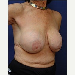 65-74 year old woman treated with Breast Implants before 2130221