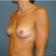 35-44 year old woman treated with Breast Augmentation before 1706484