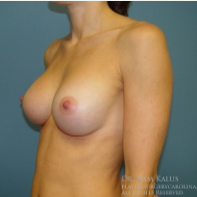 35-44 year old woman treated with Breast Augmentation after 1706484