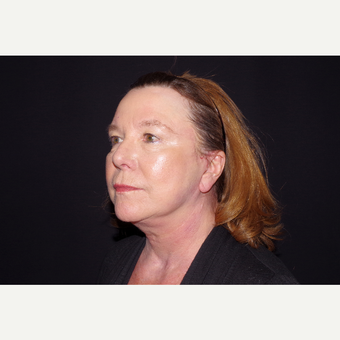 65-74 year old woman treated with Facelift and Fat Transfer to the Face after 3645330