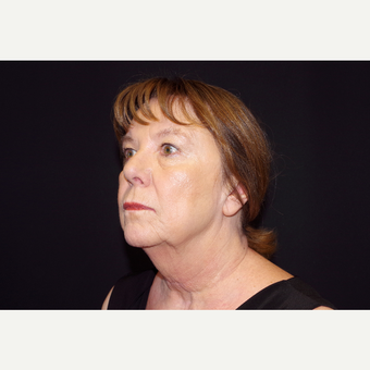 65-74 year old woman treated with Facelift and Fat Transfer to the Face before 3645330