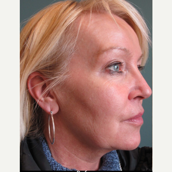 45-54 year old woman treated with Facelift before 3713464