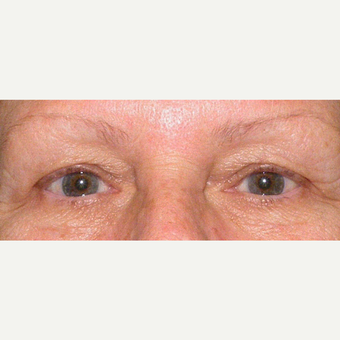 55-64 year old woman treated with Eyelid Surgery before 3441153