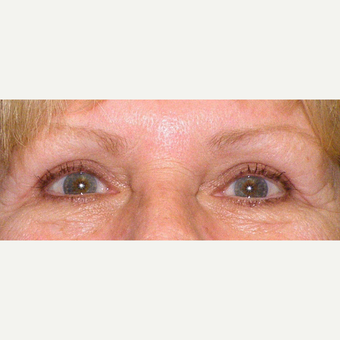 55-64 year old woman treated with Eyelid Surgery after 3441153