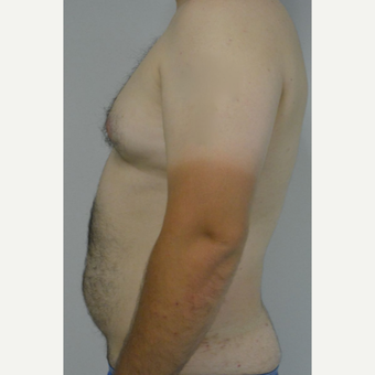 25-34 year old man treated with Male Breast Reduction before 3175427
