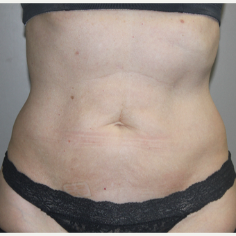 45-54 year old woman treated with SculpSure after 3015117