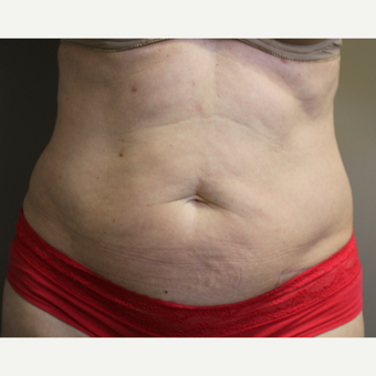 45-54 year old woman treated with SculpSure before 3015117