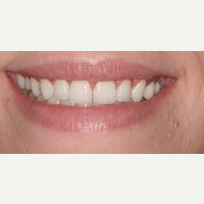 35-44 year old woman treated with Lip Lowering after 3027719
