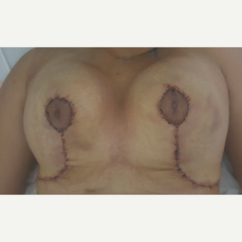 25-34 year old woman treated with Breast Reduction after 3492468
