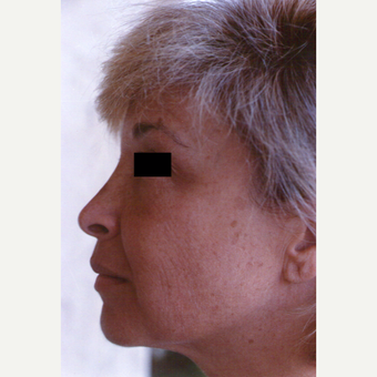 45-54 year old woman treated with Chemical Peel before 3543741