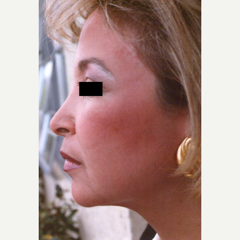 45-54 year old woman treated with Chemical Peel after 3543741