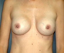 Breast Implants after 3545073