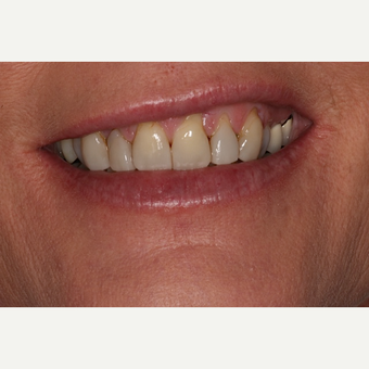 25-34 year old woman treated with Porcelain Veneers before 2893791