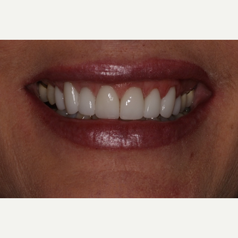 25-34 year old woman treated with Porcelain Veneers after 2893791