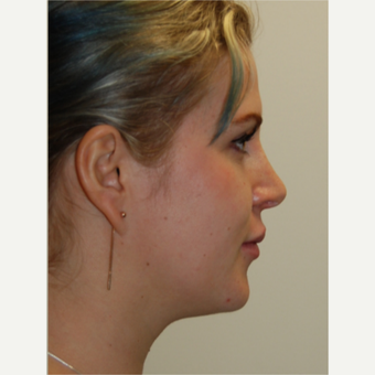 25-34 year old woman treated with Rhinoplasty and permanent Lip Augmentation. after 3742334
