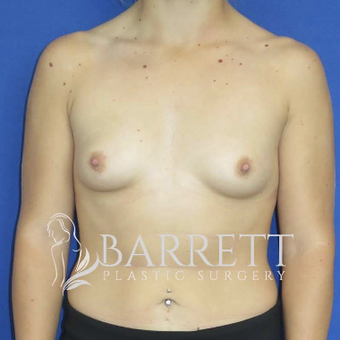 18-24 year old woman treated with Breast Implants before 3605811
